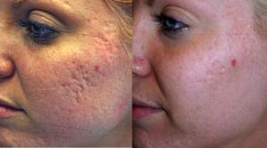 acne neoderma